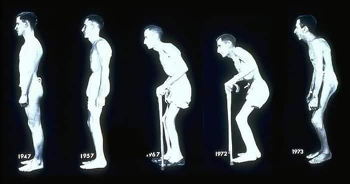 biểu đồ bệnh viêm cột sống dính khớp