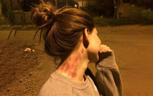 trend hôn cổ